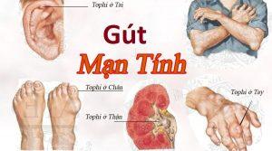benh-gut-man-tinh